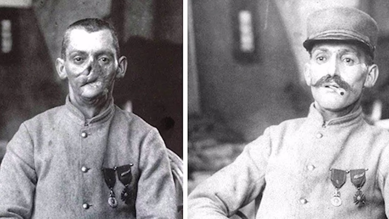 Sculptor Made Masks for Wounded WWI Soldiers with Disfigured Faces New York Post