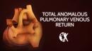 Total Anomalous Pulmonary Venous Return