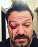 """Joe Frantz on Instagram: """"@bam__margera just sent this to me to post publicly. Please pray he stays in recovery. Please let him know that we love him."""""""