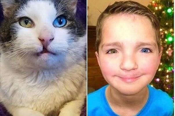 Мальчика с разными глазами и заячьей губой, которого унижали в школе, спасла кошка. В американском штате Оклахома живут необычные друзья мальчик и кот. У них одинаковые атавизмы внешности заячья