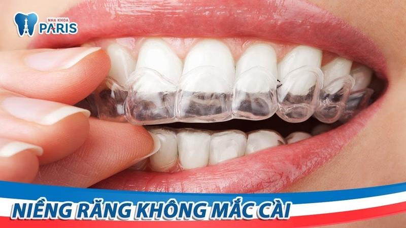 Đeo khay niềng răng không mắc cài Invisalign | Nha khoa Paris