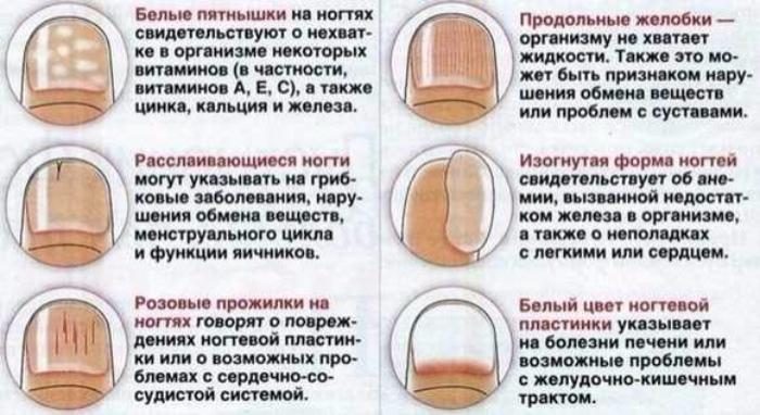 Что состояние ногтей может рассказать о вашем здоровье