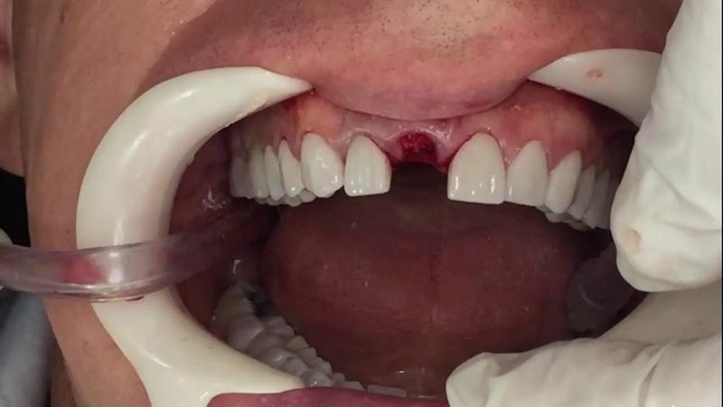 Implante Grand Morse Helix imediato em área estética simultaneamente à exodontia