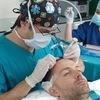 Пересадка волос в Турции клиника AVRASYA