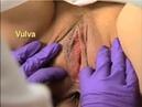 Vagina examen pelvico pelvic exam vagina exam gynecology exam