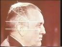 Декомпрессионная трепанация черепа © Decompression craniotomy