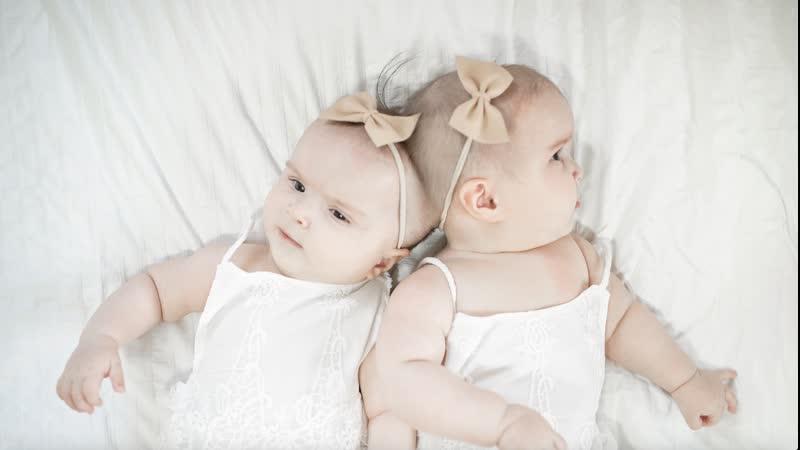 Свидетельство веры матери подарившей жизнь обреченным докторами на аборт сиамским близнецам