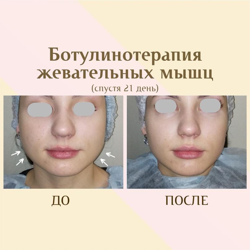 Липолитики для лица, изображение №4